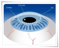 femto-lasik-methode