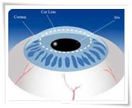 femto-lasik-methode